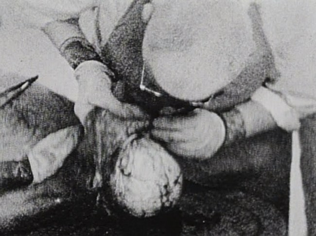A grainy still showing a man in glasses, an apron and rubber gloves closely examining a brain as he holds back the scalp.