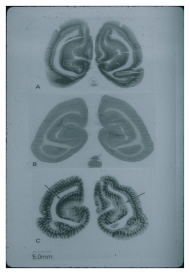 Three images of brain crossections, one light, one dark and one banded.