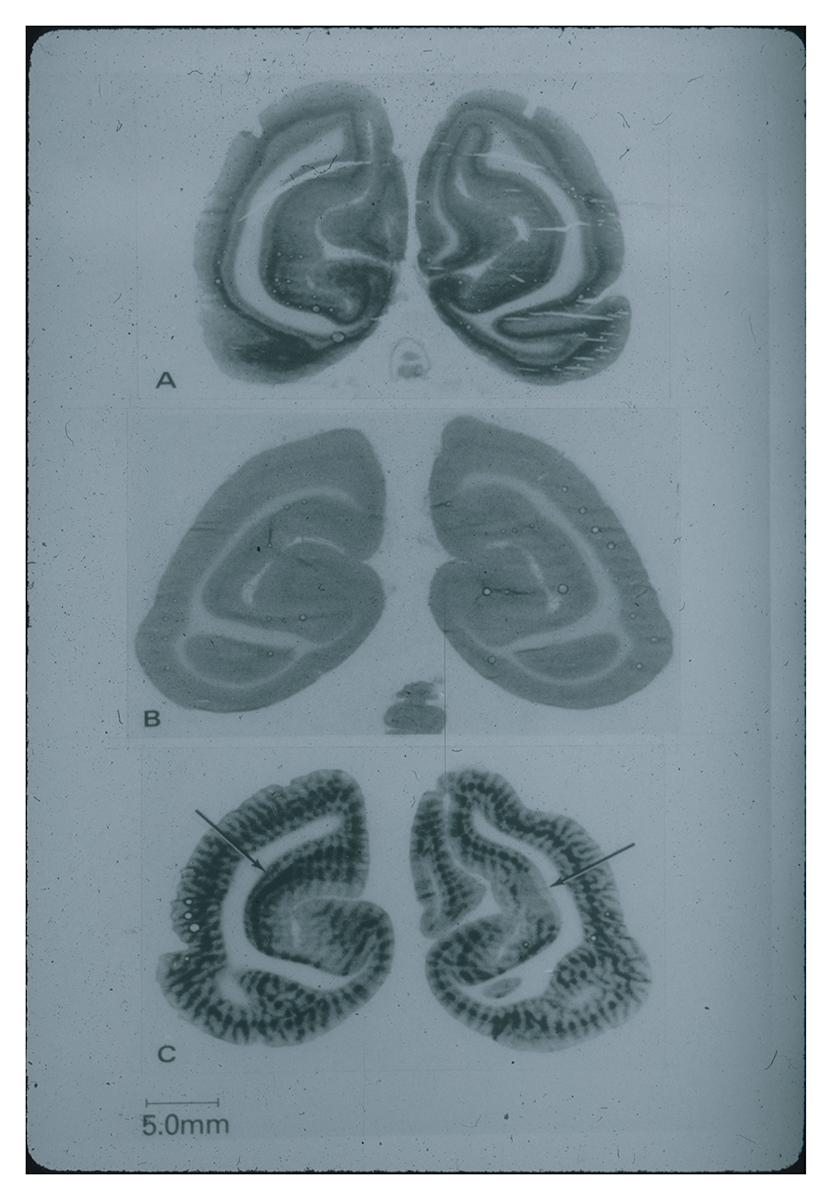 Truly Translational: Louis Sokoloff and PET Brain Imaging