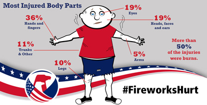 Infographic showing most injured body parts in fireworks-related injuries.