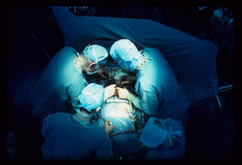 Four surgeons are photographed from above, performing open heart surgery at NIH.