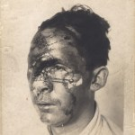 A photograph of a man with severe facial injuries in the midst of treatment.