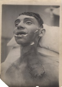 A photograph of a patient toward the end of treatment with a prosthetic lower jaw.