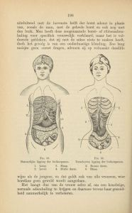 Line drawings showing normal and constrained abdominal organs.
