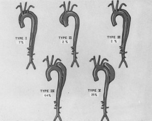 sketches of 5 various types of aortic dissections with percentage of cases.