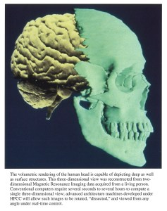 Side view of a skull depicting brain and frontal skeletal structure.