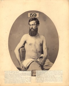 Shirtless, bearded man sit facing the camera. Scars are visible on his lower abdomen and left temple.