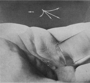 A photograph of a drop of liquid in the palm of a hand with droplets in the air identified with arrows.