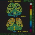 A color-coded autoradiograph of a brain section.