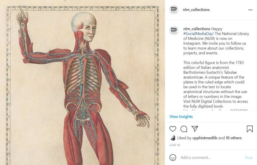 An NLM_Collections instagram post featuring an anatomical drawing and description.