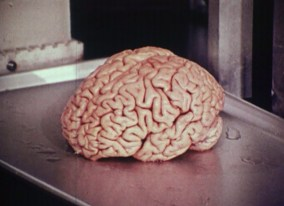A human brain ready for dissection.