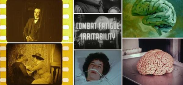 Collage of film stills including brains, patients, and title screen for Combat Fatigue Irritability.