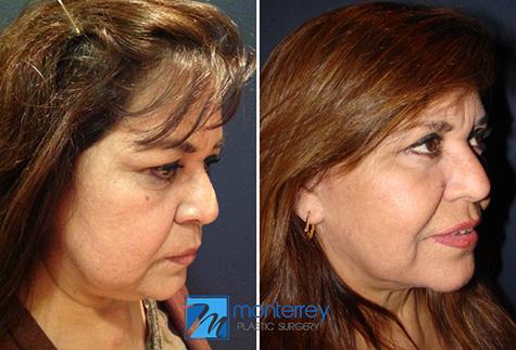 cirugía plástica de estiramiento facial realizada por el Dr. Josué Lara Ontiveros.