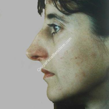 Rinoplastia antes y después 1 a