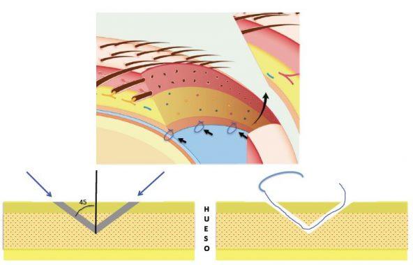 Anclaje óseo en una operación de reducción de frente
