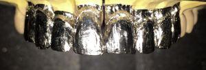 Ajuste de lámina de platino de 0,02 mm de espesor en cada diente.