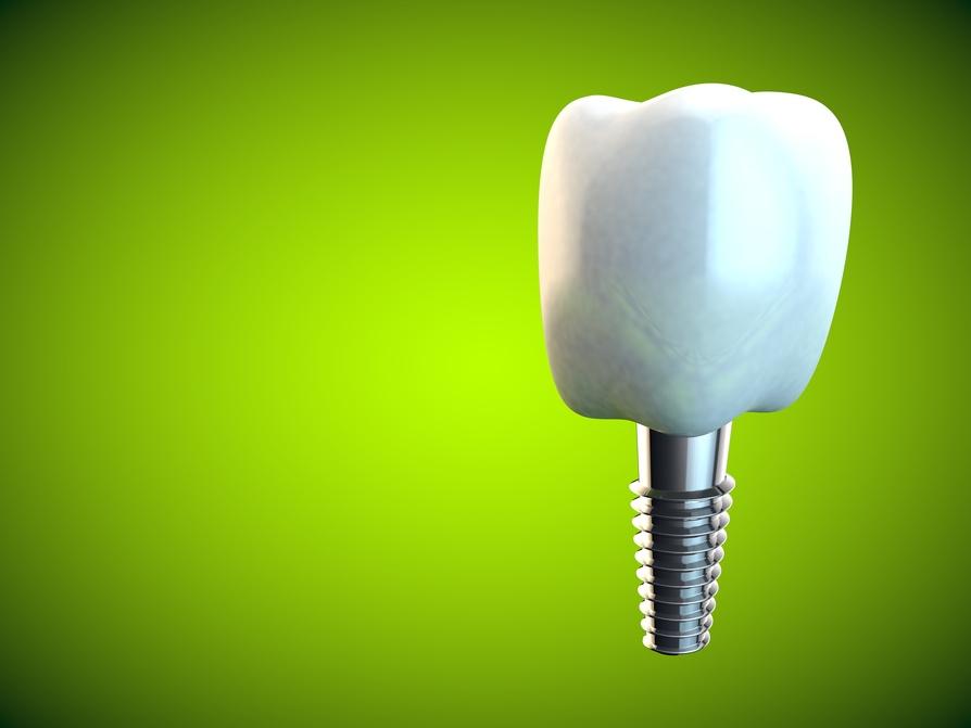 Implantología dental: todo lo que un paciente debe saber. Procedimientos y precio justo.