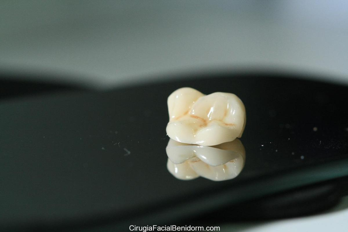Prótesis dentales: nuevos materiales en odontología estética
