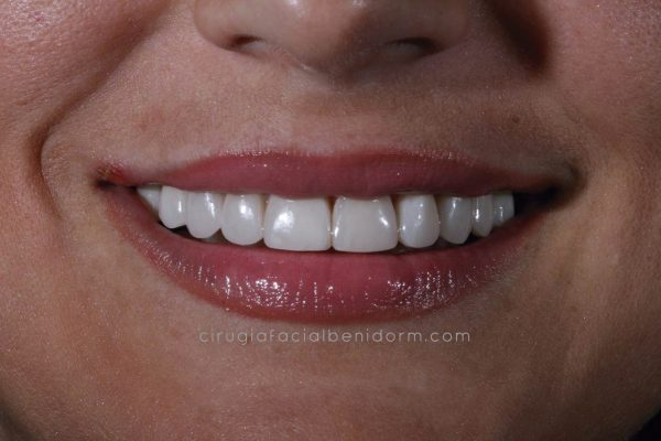 Carillas estéticas dental Benidorm. Veneers in Spain
