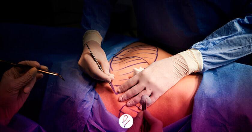 Ejecución de la intervención por el Cirujano