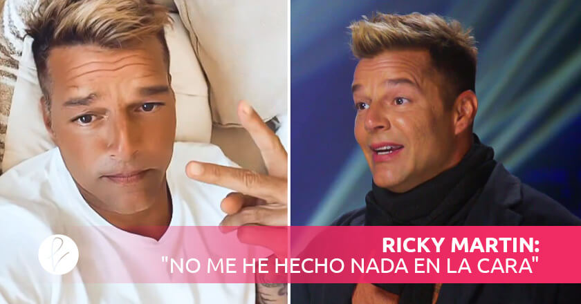 """Ricky Martin: """"no me he hecho nada en la cara"""""""