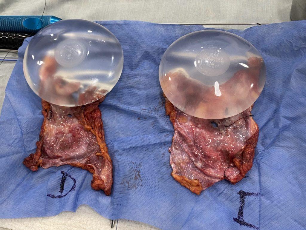 implantes y cápsula