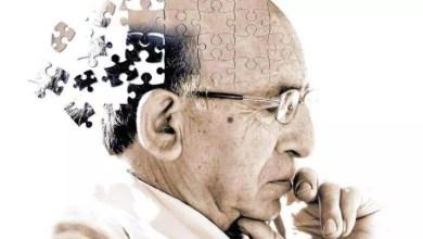 Photo of Optimismo en el área científica con respecto a la cura del Alzheimer