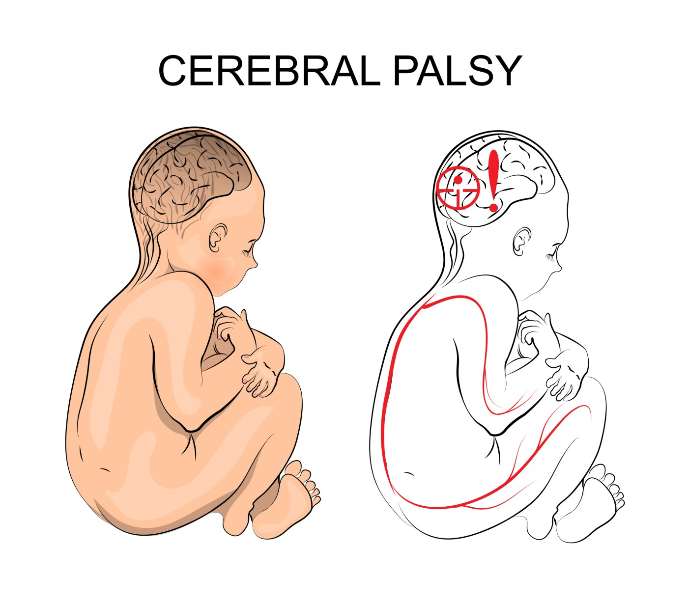 Nurses and Midwifery Council to train nurses on cerebral palsy