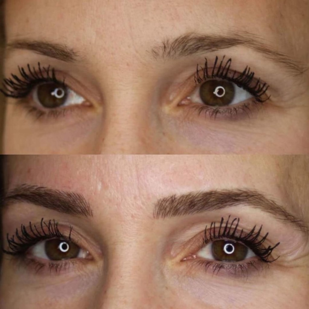 All You Need To Know About Microblading