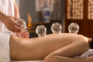 Terapija cupping