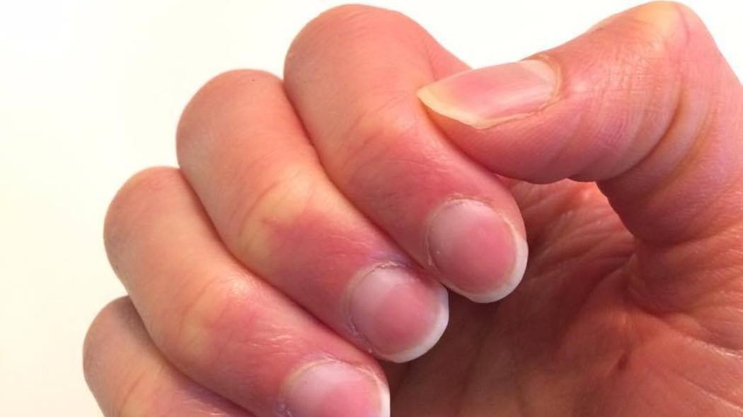 spunta-un-altro-possibile-sintomo-di-covid-19-e-riguarda-le-unghie