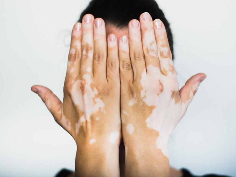 """tutto-pronto-per-il-""""world-vitiligo-day"""",-visite-dermatologiche-gratuite-all'ospedale-israelitico-di-roma."""