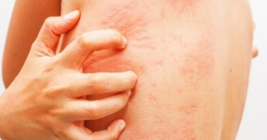 Tips For Itchy Skin