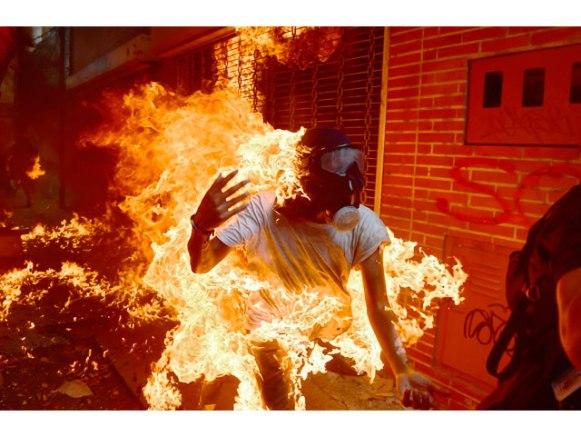 Un opositor que resultó quemado vivo víctima de sus propias acciones