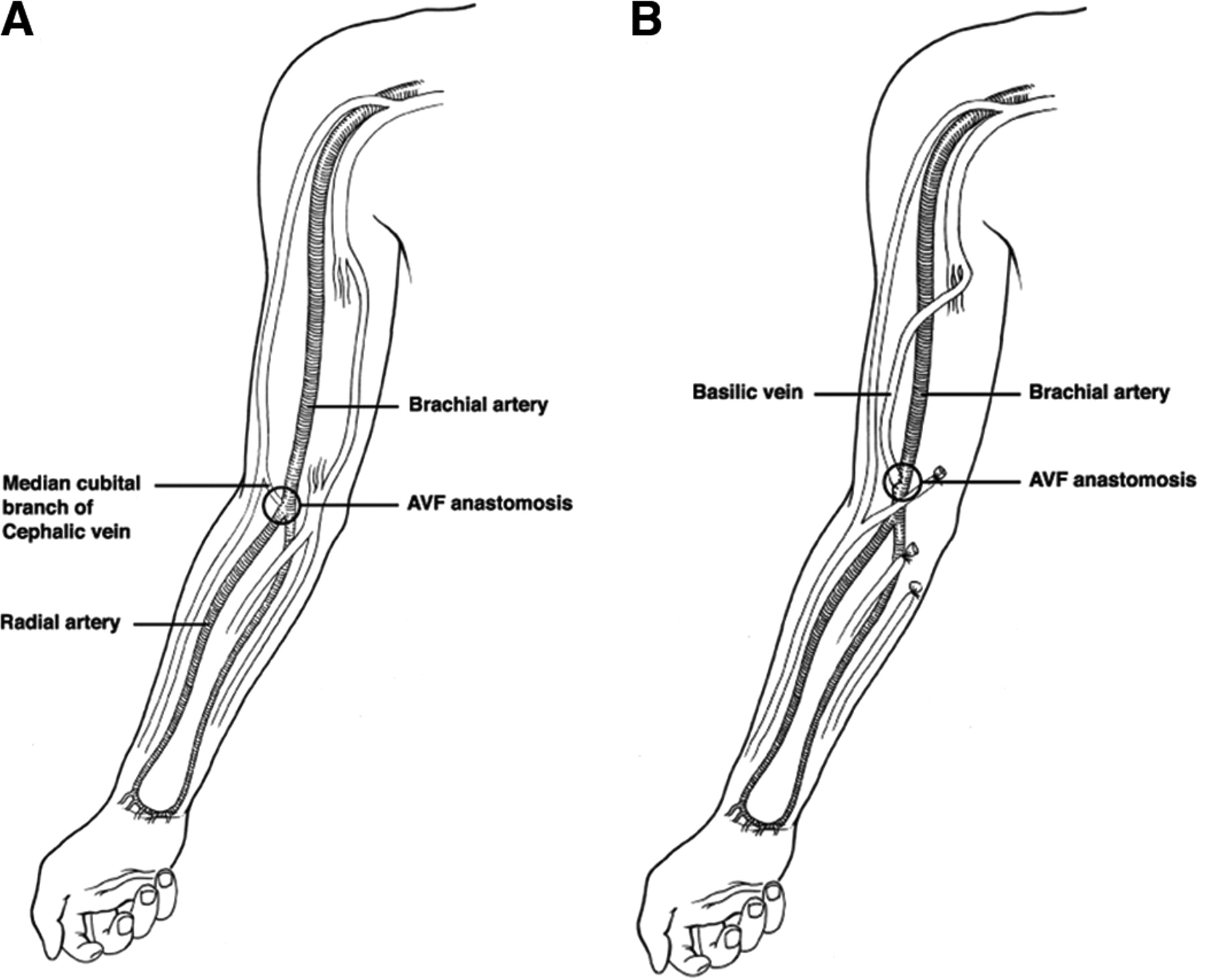 Outcomes Of Brachiocephalic Fistulas Transposed Brachiobasilic Fistulas And Upper Arm Grafts