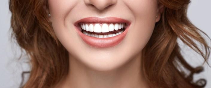 Teeth Whitening in Bristol