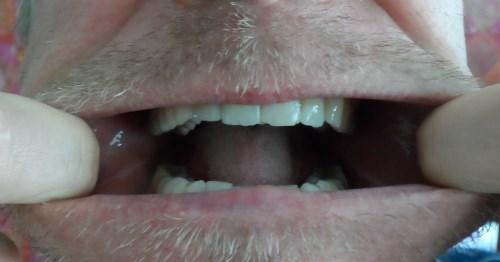 facial isometrics mouth