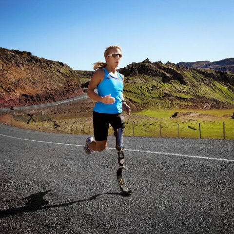 Prosthetics Can Be Made Affordable With 3-D Printers