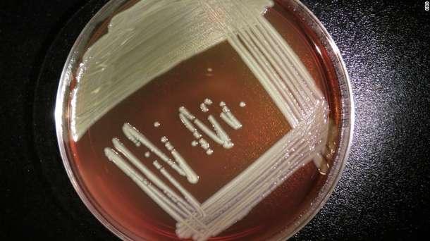 5 things to know about Elizabethkingia bacteria