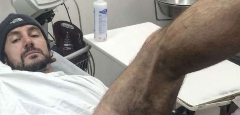 Biker gets burned on thigh when iPhone explodes