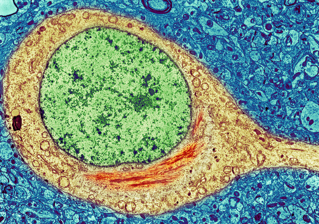 A colorized image of a brain cell from an Alzheimer's patient shows a neurofibrillary tangle (red) inside the cytoplasm (yellow) of the cell. The tangles consist primarily of a protein called tau. (Photo via SPL/Science Source)