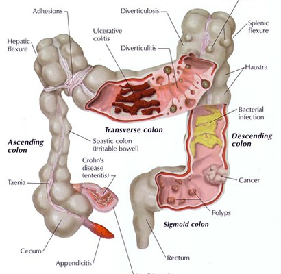 health complications of an unhealthy colon