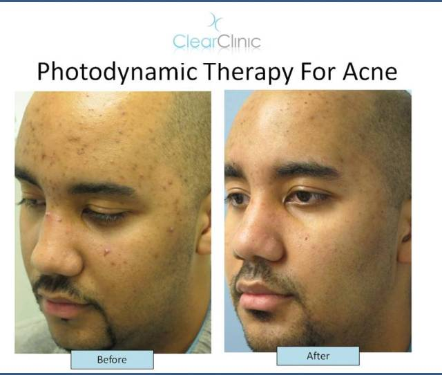 Adult Acne Treatment In Wall Street Journal