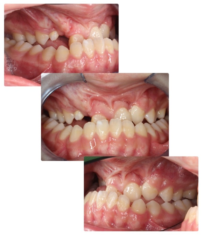 plan de traitement orthodontico-chirurgical