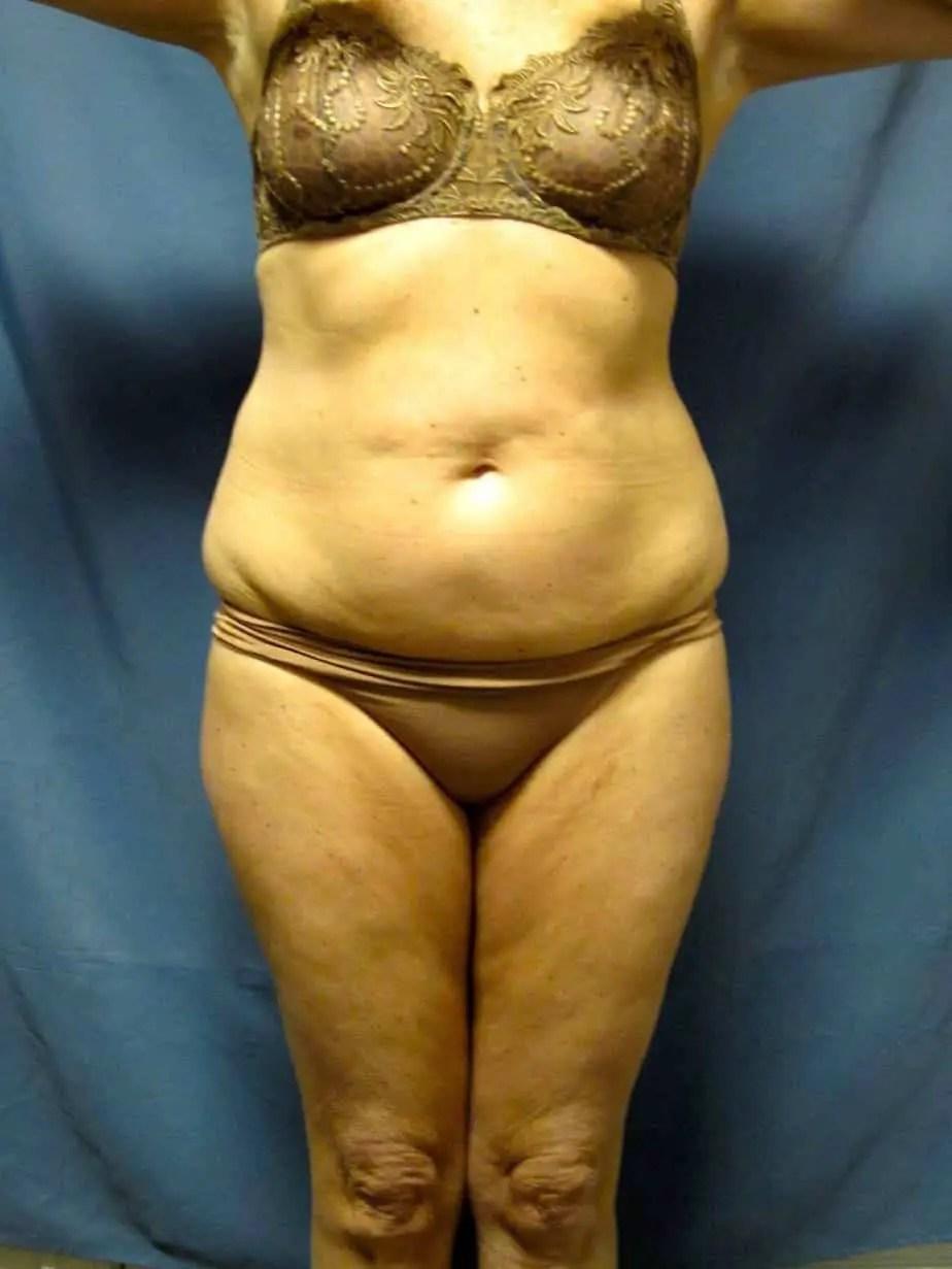 VASER LIPOSCULPTURE | BODY SCULPTING