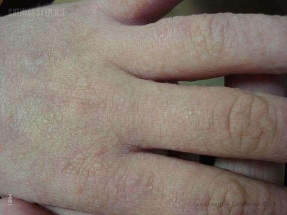 Сыпь на руках в виде маленьких прыщей, чешется, фото