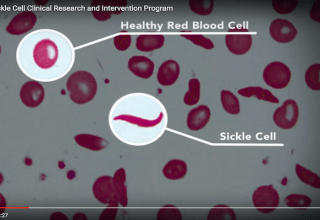 Sickle cell and St. Jude