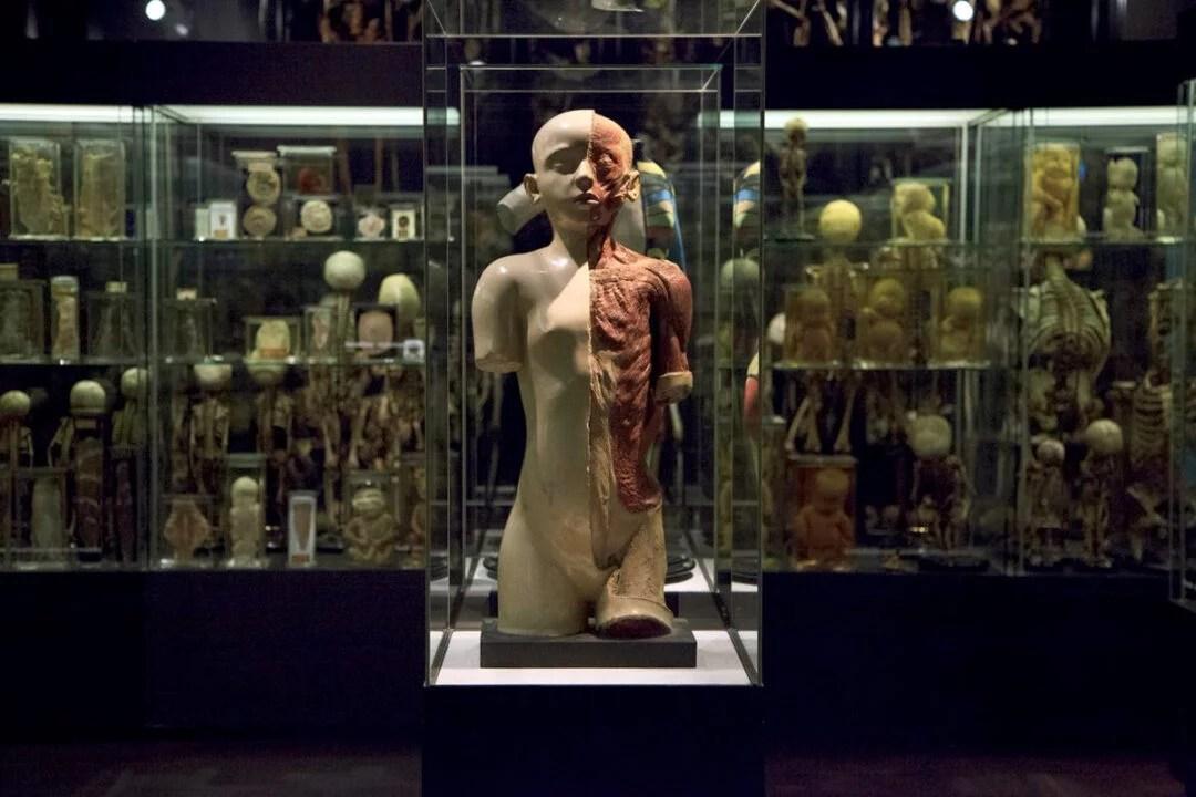 Museu de Vrolik um dos mais sombrios do mundo