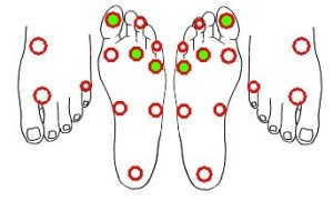 Screening for diabetic neuropathy | ClinDx