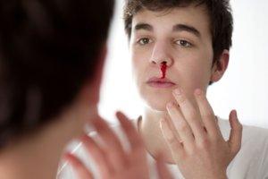 Βοήθεια με τραυματισμούς και πληγές της μύτης